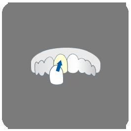 Veneers-icon