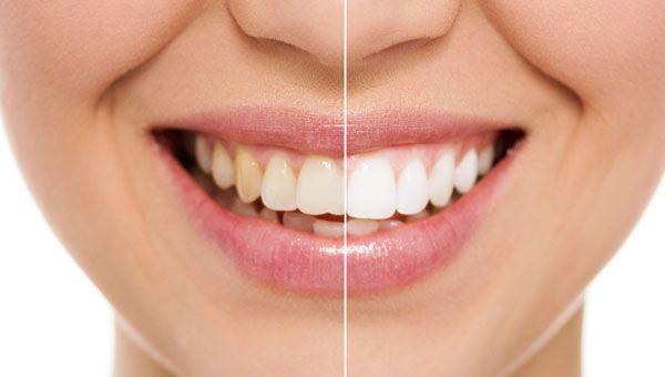 Teeth Whitening in ottawa