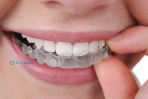 DENTIST IN OTTAWA invisalign in ottawa