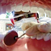 DENTIST IN OTTAWA Afford Dental Care
