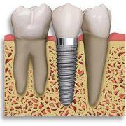 DENTIST IN OTTAWA Dental Implants