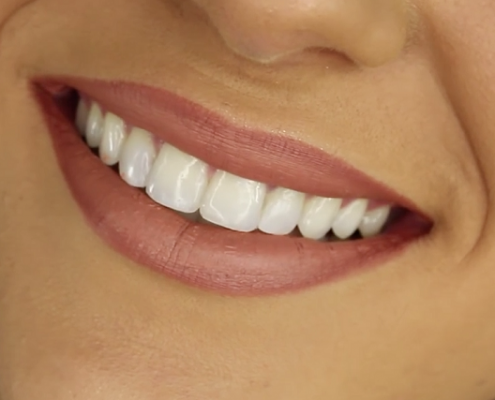 DENTIST IN OTTAWA Cosmetic Dentistry