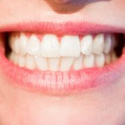 DENTIST IN OTTAWA Perfect smile