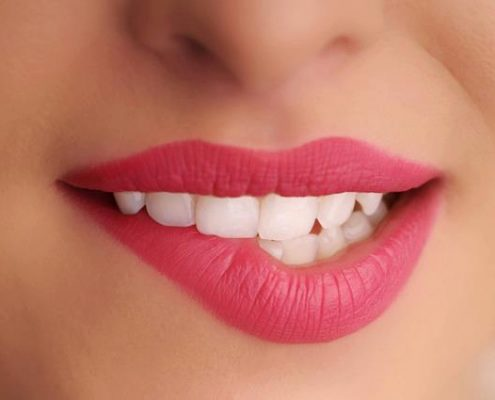 DENTIST IN OTTAWA Trends in Cosmetic Dentistry