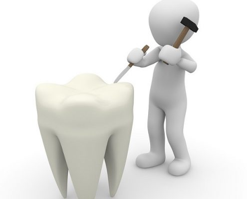 DENTIST IN OTTAWA Tooth Pain