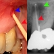 DENTIST IN OTTAWA Sinugram_abscessed_tooth