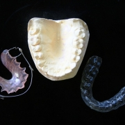 DENTIST IN OTTAWA orthodontic
