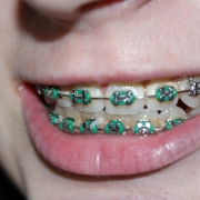 Teens With Braces